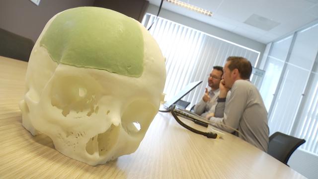 test Tumeurs osseuses: une révolution qui réduit le risque de récidive à néant