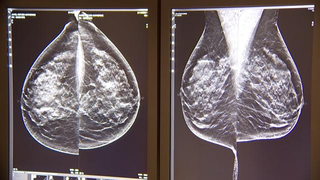 Cancer du sein : l'importance du dépistage