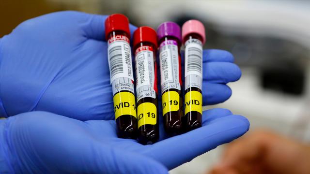 testLa Croix-Rouge à la recherche de personnes guéries du coronavirus